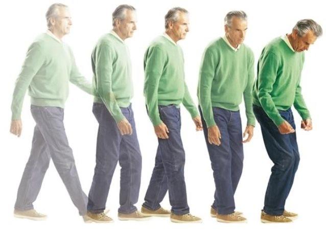 11. apríl je Svetovým dňom Parkinsonovej choroby